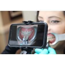 ShadeWave Mobile Dentist